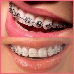 braces -san antonio orthodontics