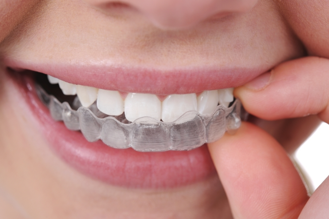 orthodontic tratment with invisalign braces